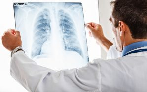 Lung Cancer Types and Survival Rates